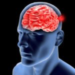 רשלנות רפואית במפרצת מוח