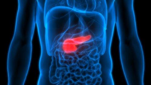 רשלנות רפואית בסרטן הלבלב